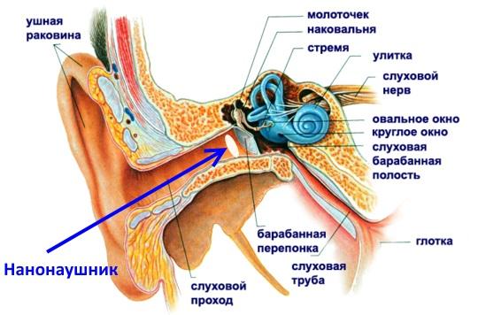 Нанонаушник в ухе. Как выглядит